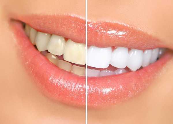 Система Zoom 3 для отбеливания зубов